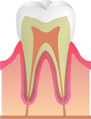 【C0】(むし歯の初期段階)