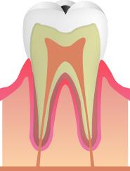 【C1】(むし歯の初期段階)