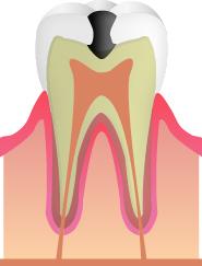 【C2】(むし歯の中期段階)