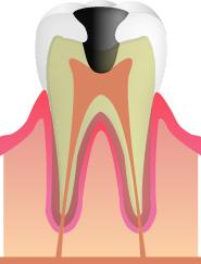 【C3】(むし歯の重度段階)