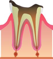 【C4】(むし歯の末期段階)