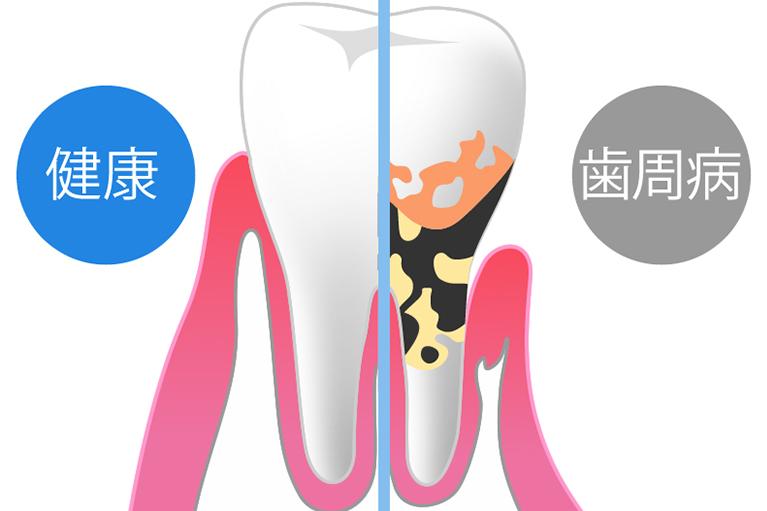歯周病はどのような状況か?