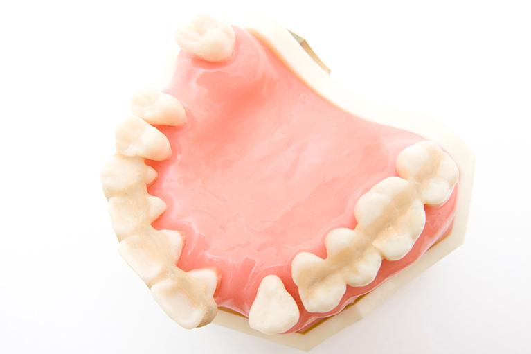 歯周病により歯を失ってしまった場合